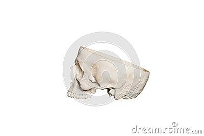 Skull opened