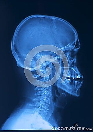 Free Skull X-ray Image Stock Photography - 12941892