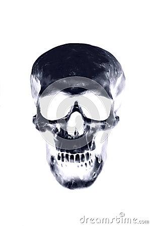 Free Skull Xray Royalty Free Stock Photos - 34610638