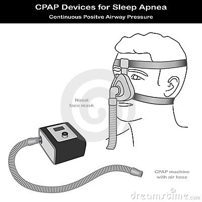Sleep Apnea, CPAP, Nose Mask