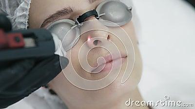 Sluit schoonheidsspecialisthanden maakt omhoog tot laser vasculaire verwijdering op het gezicht van de vrouw met speciaal materia stock videobeelden
