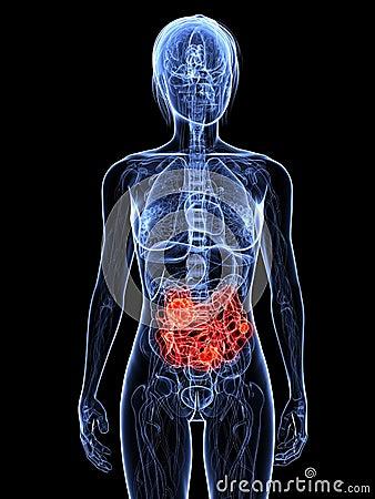 small intestine cancer 14390805