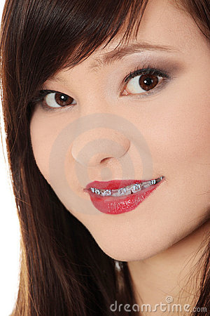 Smiling teen woman with correcting device on teeth