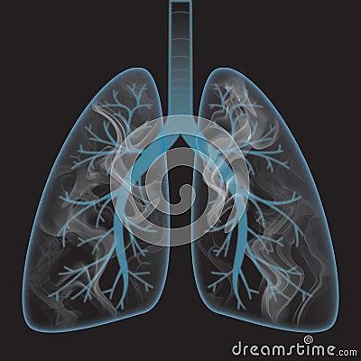 Smoke inside the lung