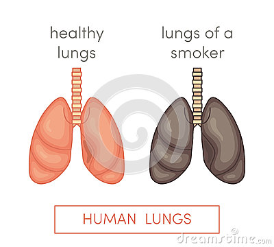 Smoker's Lungs Stock Illustration - Image: 72215723