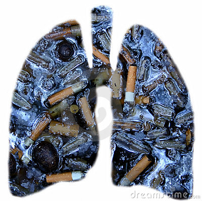 Free Smokers Lungs Stock Photo - 945380