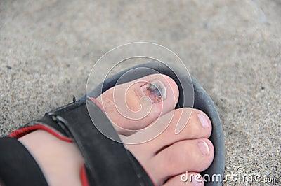 Sore toe