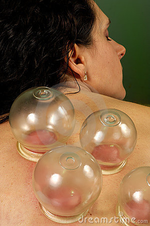 Free Spa Cupping Gua-Sha Treatment Stock Images - 3350994