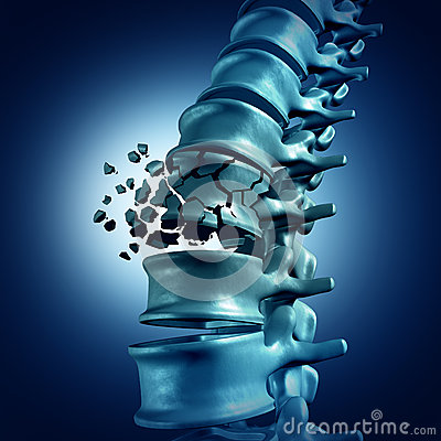 Free Spinal Fracture Royalty Free Stock Images - 60721249