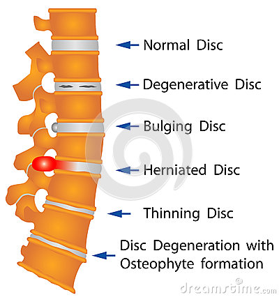 Free Spine Conditions Royalty Free Stock Image - 33467806