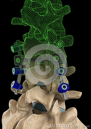 Spine Screws