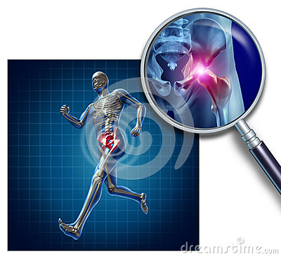 Free Sports Hip Injury Stock Photography - 26162162