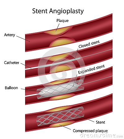 Stent angioplasty