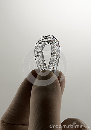 Stent for endovascular surgery, bent