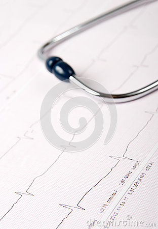 Stethoscope on ECG chart