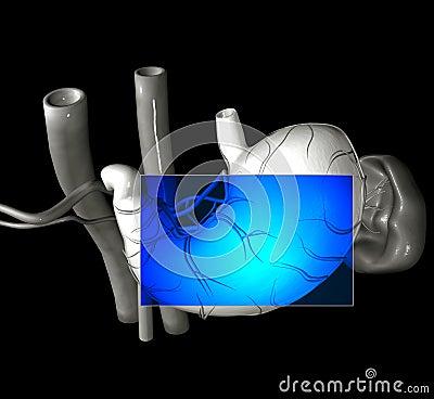 Stomach MRI