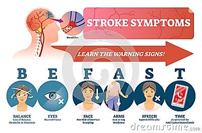 Stroke symptoms vector illustration. Signs of sudden blood clot in head. Vector Illustration