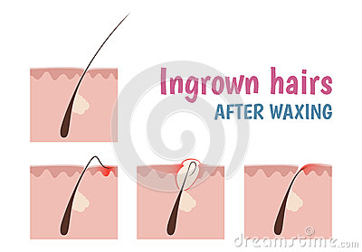 Structure Of The Hair Follicle Stock Vector Image 57442148