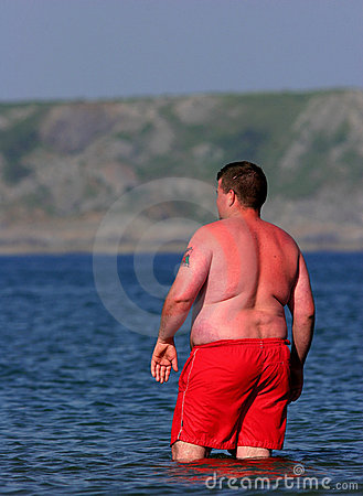 Free Sunburn Alert Stock Photography - 178282