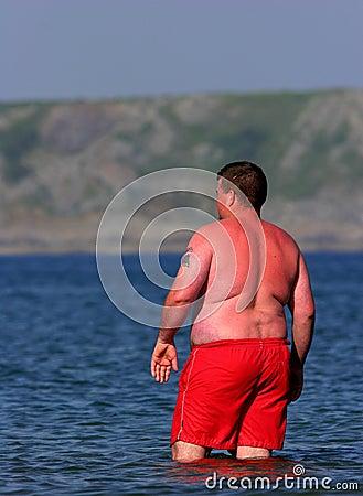 Sunburn Alert