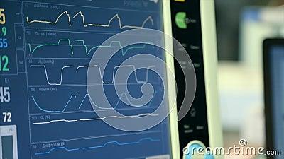 Supervisión de la condición del paciente, muestras vitales en monitor de ICU en hospital Monitor médico de ICU con el paciente vi almacen de metraje de vídeo
