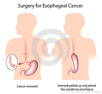 Surgery for esophageal cancer