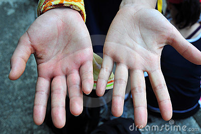 Swelling hand