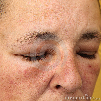 Swollen eyes and face for allergy