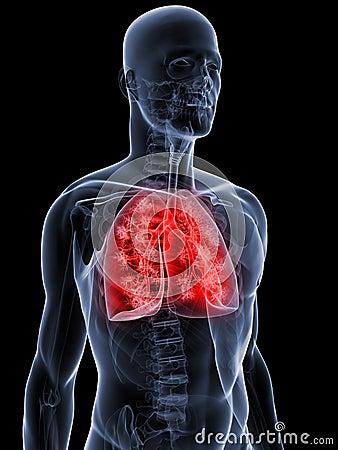 Szczegółowy płuco