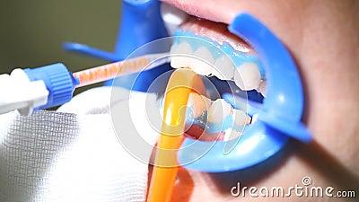 Tand- lokalvård för tandläkare, hjälpmedel som ska göras vit stock video