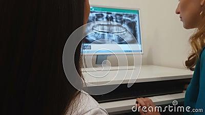 Tandläkare som visar till den tålmodiga tandröntgenstrålebilden på datoren, tand- diagnos stock video