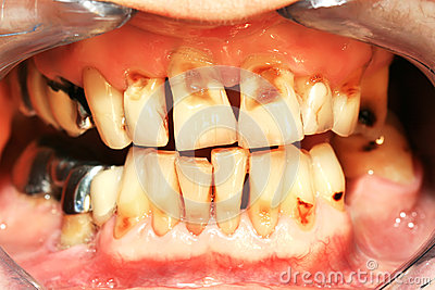 Teeth abrasion