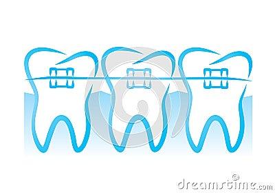 Orthodontic Braces Clip Art