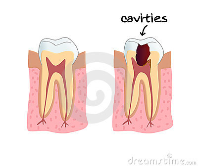 Teeth cavities