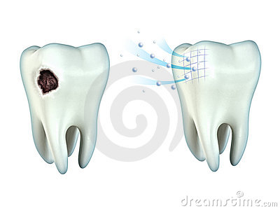 Teeth cavity