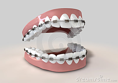 Teeth Fitted With Braces