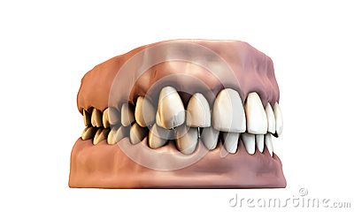 Teeth with gums