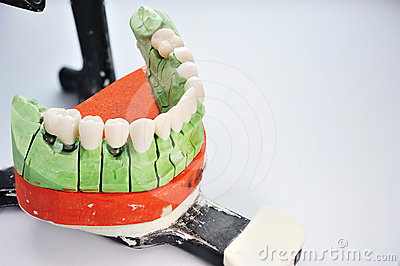 Teeth inserted in prosthesis ceramic model