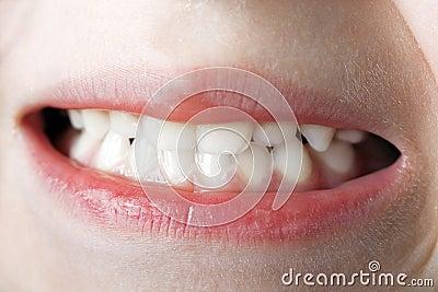 Teeth macro