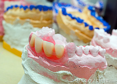 Teeth mold and prosthetic devices  close-up.