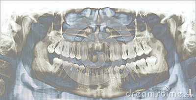 Teeth X-ray Stock Photo