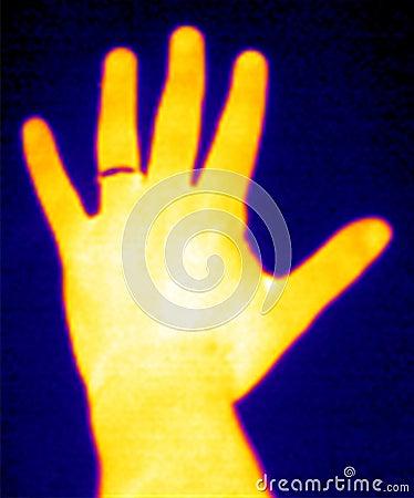 Termógrafo-Mano y anillo
