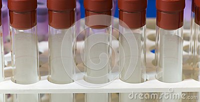 Test tubes for blood samples