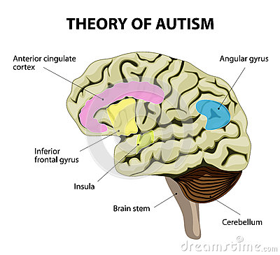 brain development and autism essay Autism spectrum disorder (asd) is a complex developmental disorder that affects the brain's normal development of social and communication skills.