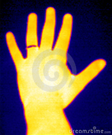 Thermograph-Hand u. Ring