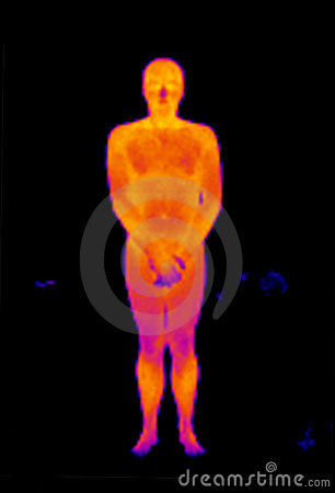 Thermograph-Nude front man