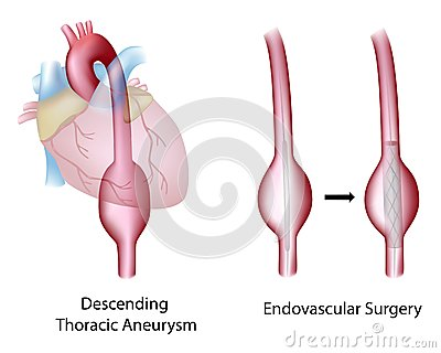 Thoracic aortic aneurysm