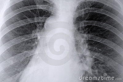 Stock Images: Thorax X-ray of the lungs