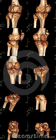 Three-Dimensional knee
