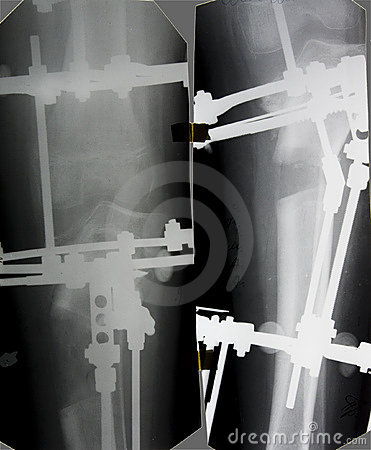 Tibia x-ray picture